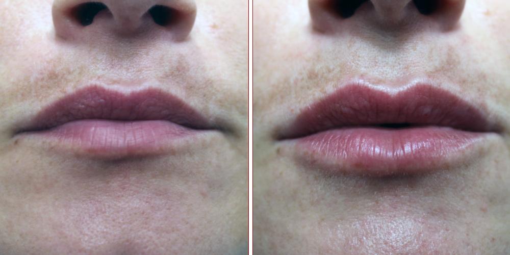 powiększanie ust Katowice zabieg z wykorzystaniem Restylane Kysse